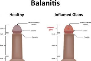 Can Balanitis be cured?